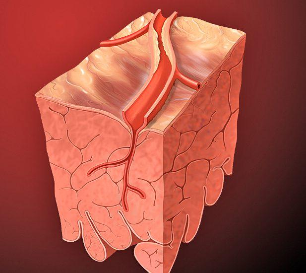 Srčana arterija