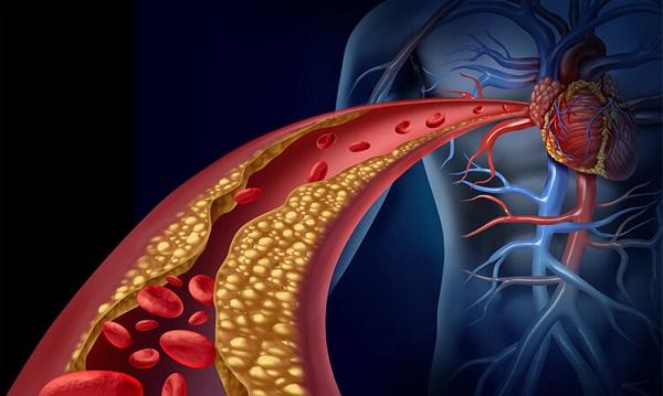 Hiperlipidemija - povišene masnoće u krvi