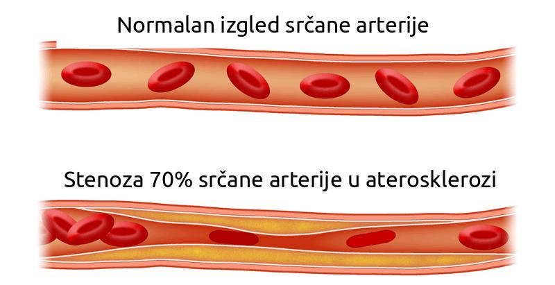 Ateroskleroza uzrok angine pektoris