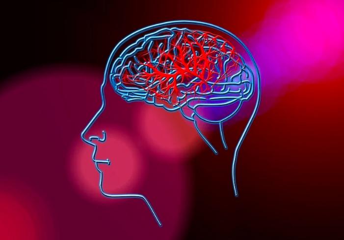 Šlog moždani udar CVI