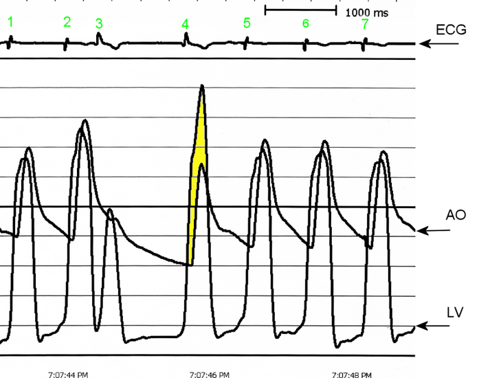 Hipertrofička kardiomipatija