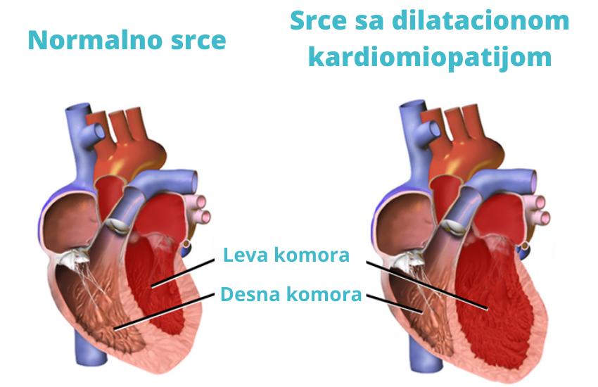 Kardiomiopatije
